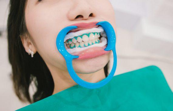 טיפולי שיניים אסתטיים בעידן המודרני