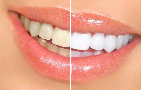 רפואת שיניים לשימור הצבע הלבן של השיניים