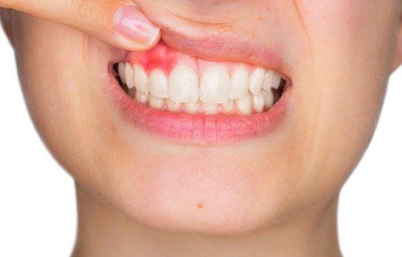 טיפולי חניכיים לשיפור בריאות הפה